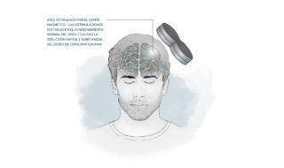 tratamiento estimulacion magnetica transcraneal-min
