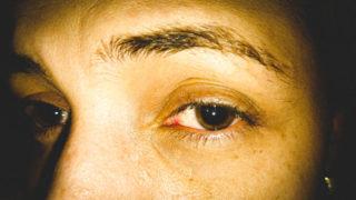por qué se dilatan las pupilas